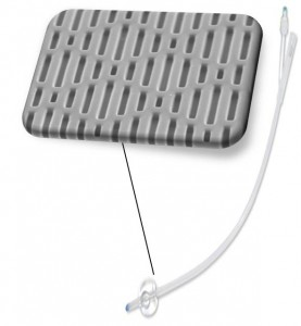 Sharklet Technologies' urinary tract catheter