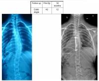 ApiFix, Adolescent idiopathic scoliosis