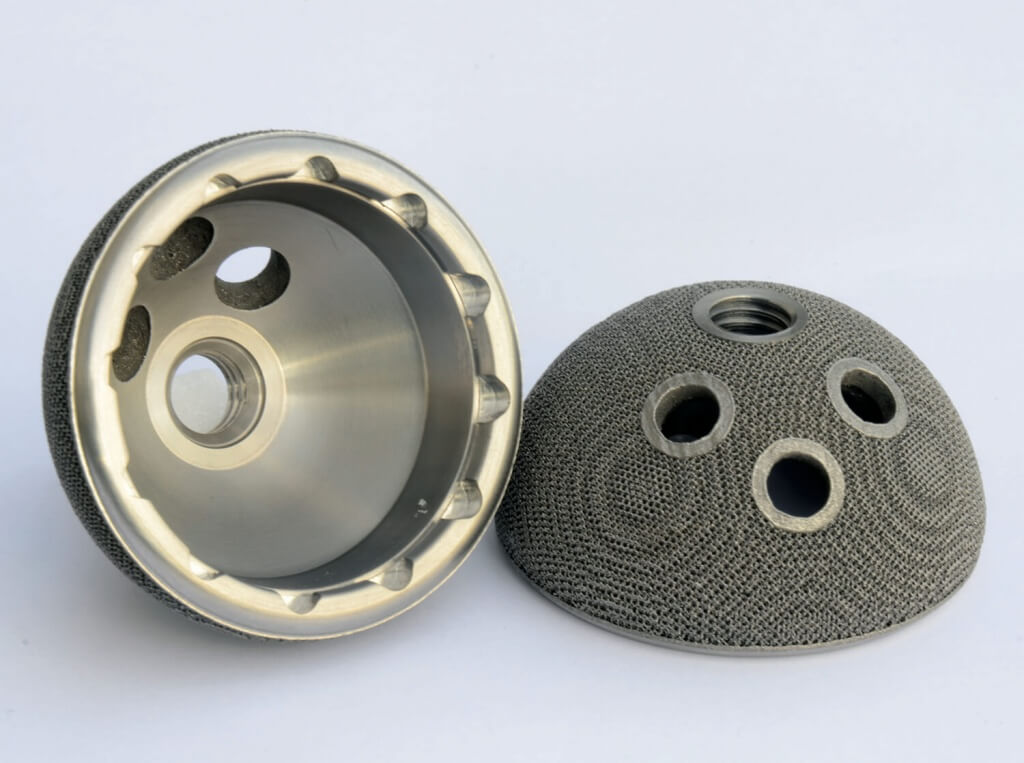 3-D printed hip implant, electron beam melting technique