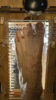 Rice University, Diabetic foot