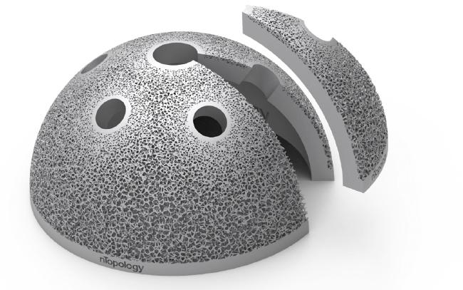 Acetabular hip cap
